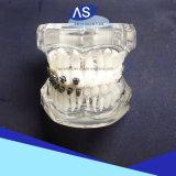 Uno mismo material ortodóntico del estilo de Damon Q del producto dental que liga los corchetes con 345 ganchos de leva