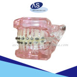 De orthodontische Zelf het Afbinden Steunen van het Metaal van de Stijl van Damon van Steunen met Uitstekende kwaliteit