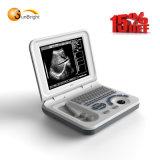 Förderung! ! ! Preiswertester Preis! ! ! Volle Ultraschall-Maschine FDA /Ce Digital-Sun-806e bewegliche bescheinigt in 240V zu 100V