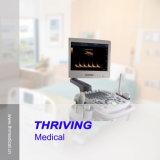 máquina do ultra-som de Doppler da cor 3D