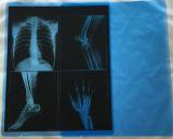 Película de raio X seca da película médica azul