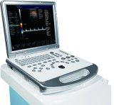 医学の携帯用超音波のスキャンナー、3Dカラードップラー機械とPlC60