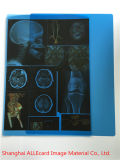 ペットインクジェット印刷の医学のX線の青のフィルム