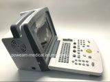 의학 휴대용 초음파 스캐너