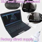 Matériel portatif de diagnostic d'ultrason d'ordinateur portatif de mode de B