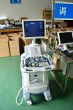 Fornitore popolare di scanner di ultrasuono di Digitahi del carrello (YJ-U100T)