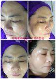 Снятие Melasma Freckle нет оживление