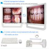 """"""" video dentale 17 con il sistema Intra-Oral senza fili della macchina fotografica"""