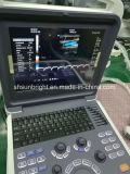 Ultrasuono portatile promozionale Sun-906e Doppler vascolare di Doppler Elastography di colore