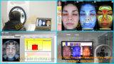 Testeur de la peau de l'analyseur de la peau les plus chauds Visia Analyse de la peau pour la vente de la machine