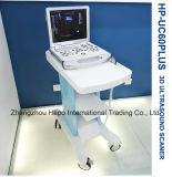 Colorer le scanner portatif d'ultrason d'appareil médical de Doppler