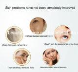 El dispositivo de Dermabrasion de la máquina de Microdermabrasion de la peladura del diamante inclina masaje facial de la belleza del cuidado de piel del retiro del acné de la limpieza del filtro
