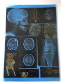 Film médical de rayon X sec médical bleu de film de jet d'encre