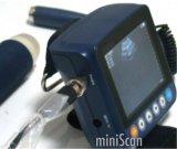 Meditech Minisacnの手首の超音波のスキャンナー