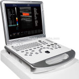 Equipamentos médicos com base em PC Diagnóstico ultra-sônico Full Digital Portable Ultrasound
