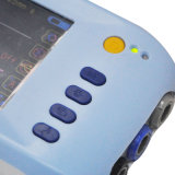 Monitor paciente de venda de sinal vital do multiparâmetro de China o melhor com a Tela-Candice de 5 polegadas