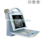 Ysb5600 más calientes de alta resolución portátil modelo de máquina de ultrasonido ecógrafo portátil más barato