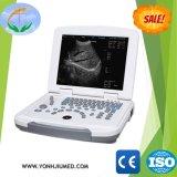 Yj-U500 Médica Laboratório utilizado Full-Digital scanner de ultra-som portátil