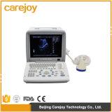 Scanner portatile pieno di ultrasuono del controllare di Digitahi con la sonda convessa (80 elemento) - Alisa