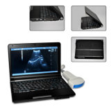 Linear Probe (RUS-9000F)를 가진 10 인치 Laptop Ultrasound Scanner - Fanny