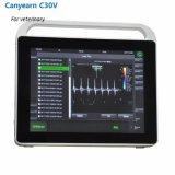 十分のCanyearn C30Vデジタルの超音波診断システムすべてのタッチ画面携帯用カラードップラー超音波のスキャンナー