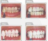 キットを白くする専門家25%の過酸化水素のゲルの歯