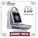 Sistema de imagens de ultra-som do dispositivo médico, scanner de ultra-som portáteis, sistema de ultra-som, sistema de imagens de ultra-sons de diagnóstico, bom preço