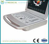 Ultra-som de Doppler da cor do equipamento médico com preço