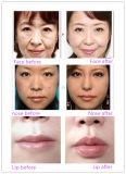 Enchimento facial de ácido cialfílico Ce Singfiller para lábios