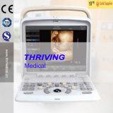 Scanner portatile di ultrasuono di Doppler di colore (THR-CD005Q)