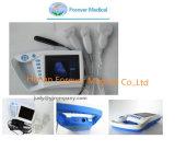 Palm échographe numérique complet (YJ-U100)
