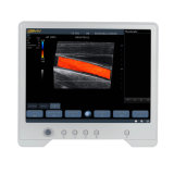 Touchscan Ts30 Ultrasound Images Medical Equipment