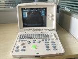 Полный блок развертки ультразвука машины стационара цифров аттестованный Ce/ISO/FDA