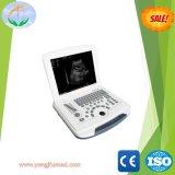 Laptop-Ultraschall-Scanner der hohen Präzisions-Voll-Digitaler B/W (YJ-U580)