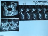 Pellicola di raggi X blu della pellicola dentale per l'immagine dentale