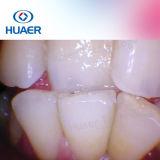Appareil-photo intraoral bon marché dentaire méga de Pixel de la connexion USB 1.3 faciles