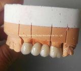Pfm Corona para prótesis del chino de laboratorio dental