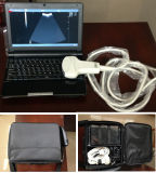 Scanner de ultra-sons B portátil com bateria