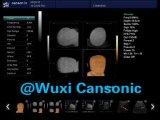Doppler-Ultraschall-Scanner der Farben-3D/4D