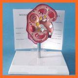 腎臓の石の医学の腎臓モデル解剖モデル