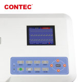 Экг Contec300g-Vet животных ветеринарные машины ЭКГ