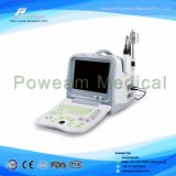 Escáner de ultrasonido oftálmico (A5)