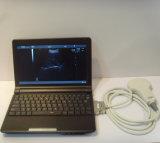 動物の獣医の人間の携帯用ラップトップの超音波機械