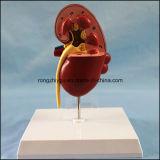 PVC الكلى الإنسان نموذج تشريحي للبيع
