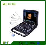 Cmefの熱い販売! 中国Mslcu18の2018最も新しいラップトップか携帯用3D&4D超音波のスキャンナー