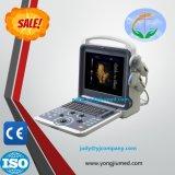Une haute précision Yj-U500 portable numérique portable médicale par ultrasons des vaisseaux sanguins.