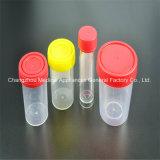 Wegwerfansammlungs-Behälter Uringe Probenmaterial-Cup
