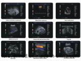 Alto explorador Lleno-Digital del ultrasonido de Doppler del color de Quilty (Yj-U60plus)