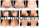 Hete Verkoop 4 die Handvatten Cryolipolysis Verwijdering Cellulite met Ce bevriezen