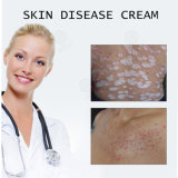 De Chinese Natuurlijke KruidenRoom van de Ziekte van de Huid voor de Behandeling van het Eczema